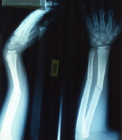 X-Ray of broken arm,  courtesy of C. Bethel, MD, and A. Dean, MD.